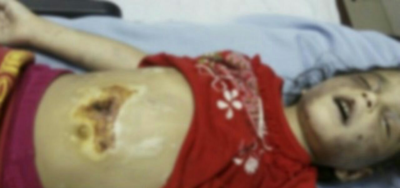 مرگ کودک پنج ساله فلاورجانی بر اثر کودک آزاری